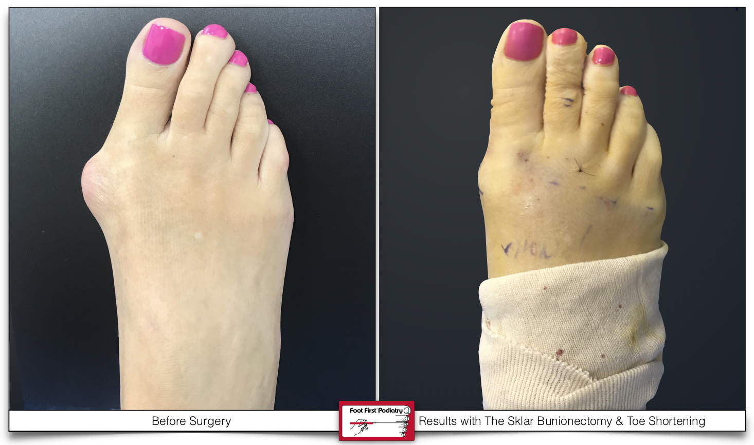 This patient is 45 minutes post-surgical correction to her right foot. She was unhappy with her painful bunion and her long, crooked 2nd and 3rd digits. At Foot First we corrected her deformities by applying our exclusive Sklar Bunionectomy and Toe Shortening procedure.