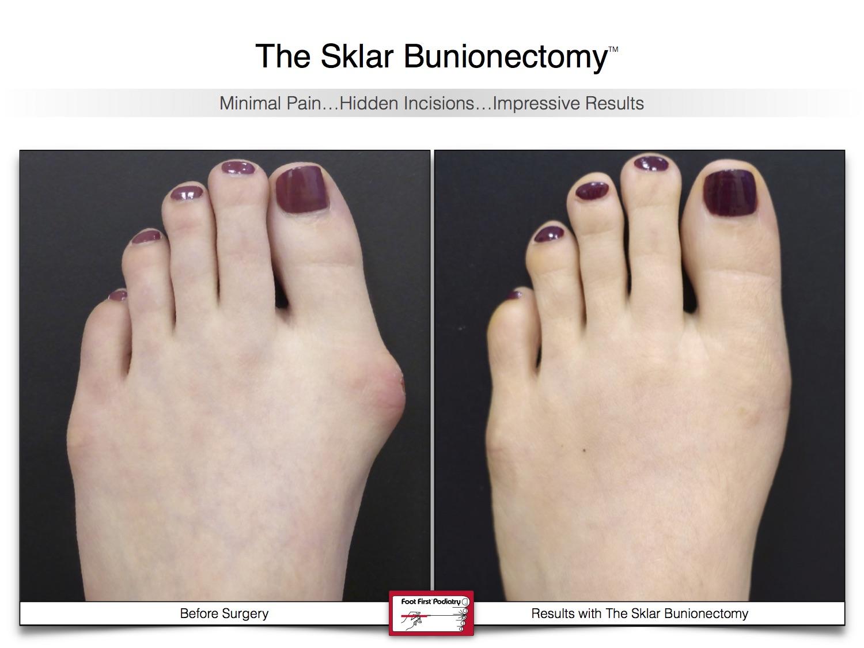 Sklar Bunionectomy 3 | Website 02.17 .jpg