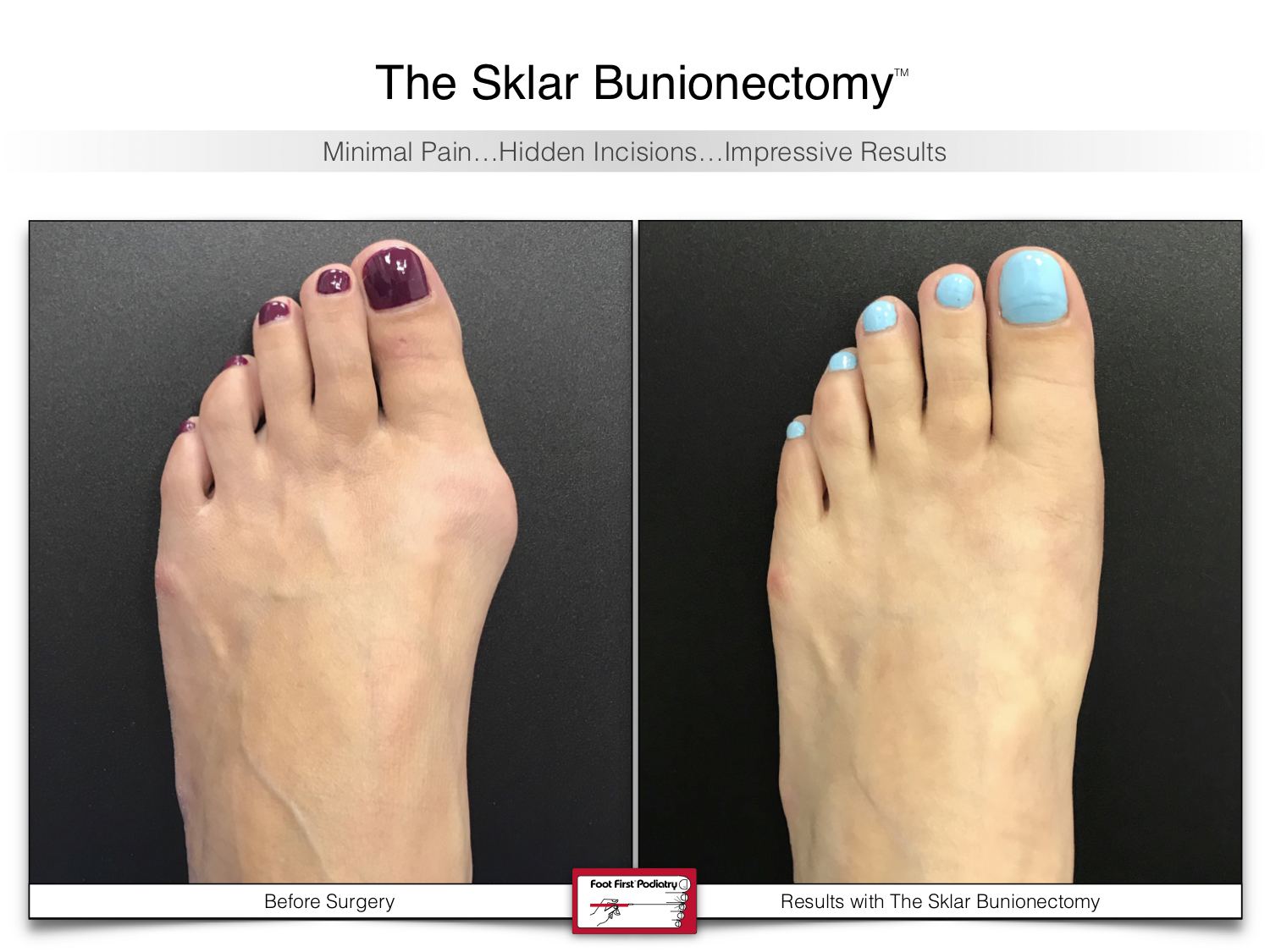 www.footfirst.com | Cosmetic Bunion and Toe Shortening Surgery 124.jpg