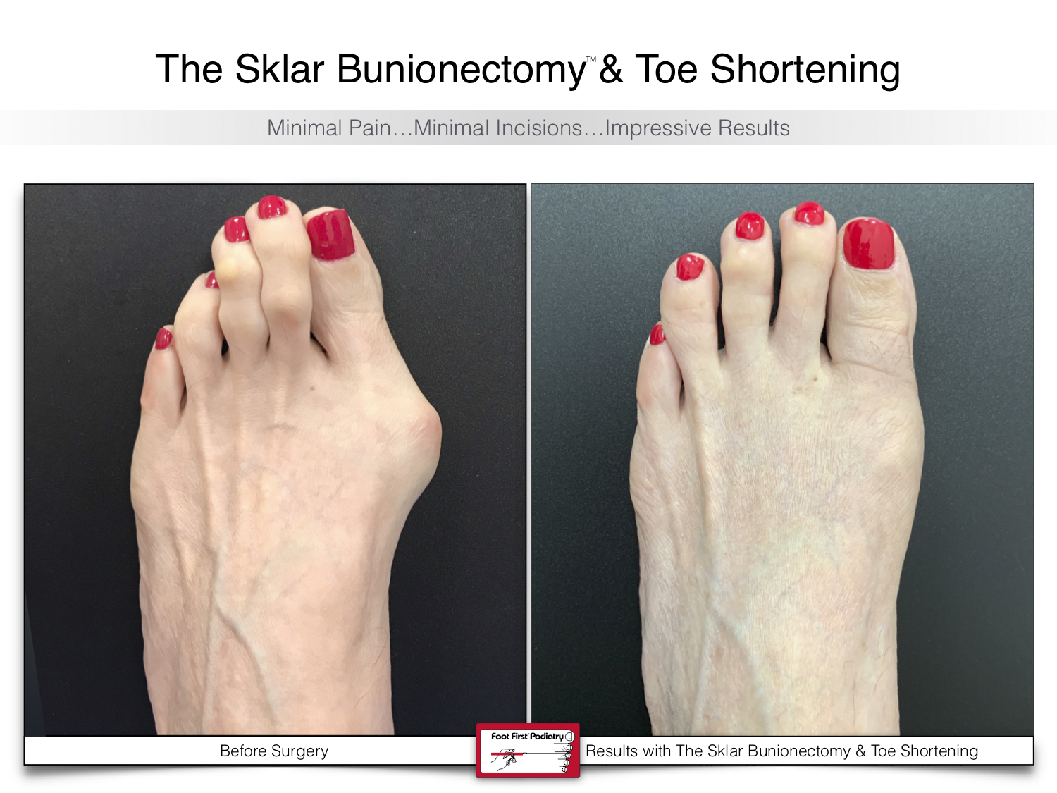 www.footfirst.com | Cosmetic Bunion and Toe Shortening Surgery 123.jpg