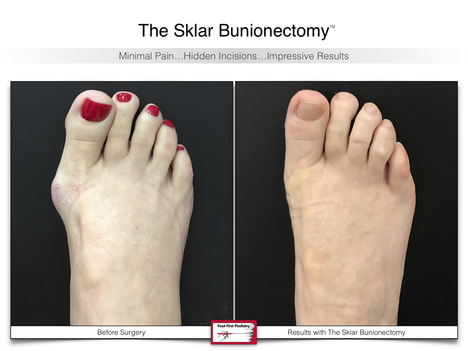 www.footfirst.com | Cosmetic Bunion and Toe Shortening Surgery 128.jpg