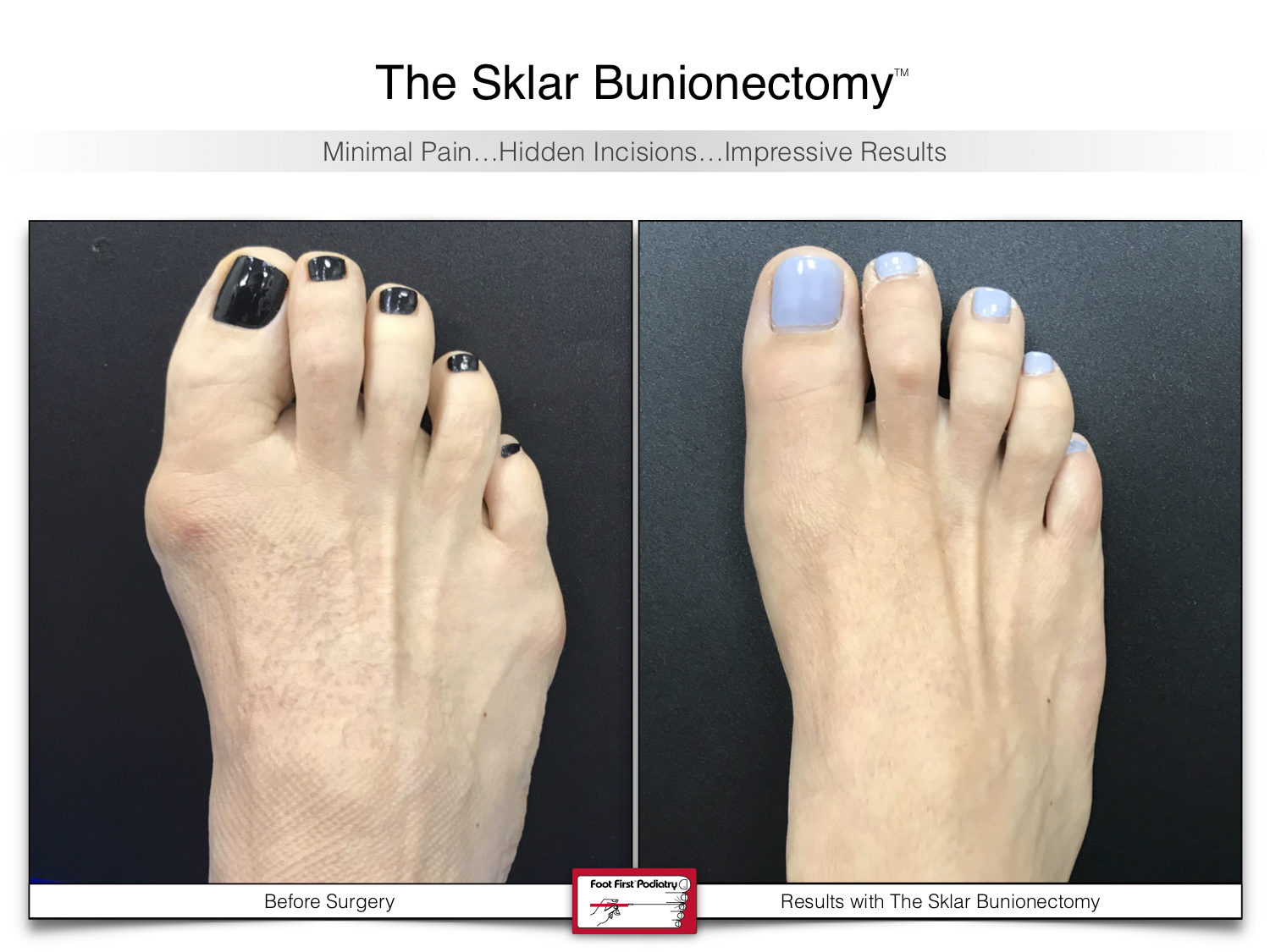 www.footfirst.com | Cosmetic Bunion and Toe Shortening Surgery 127.jpg