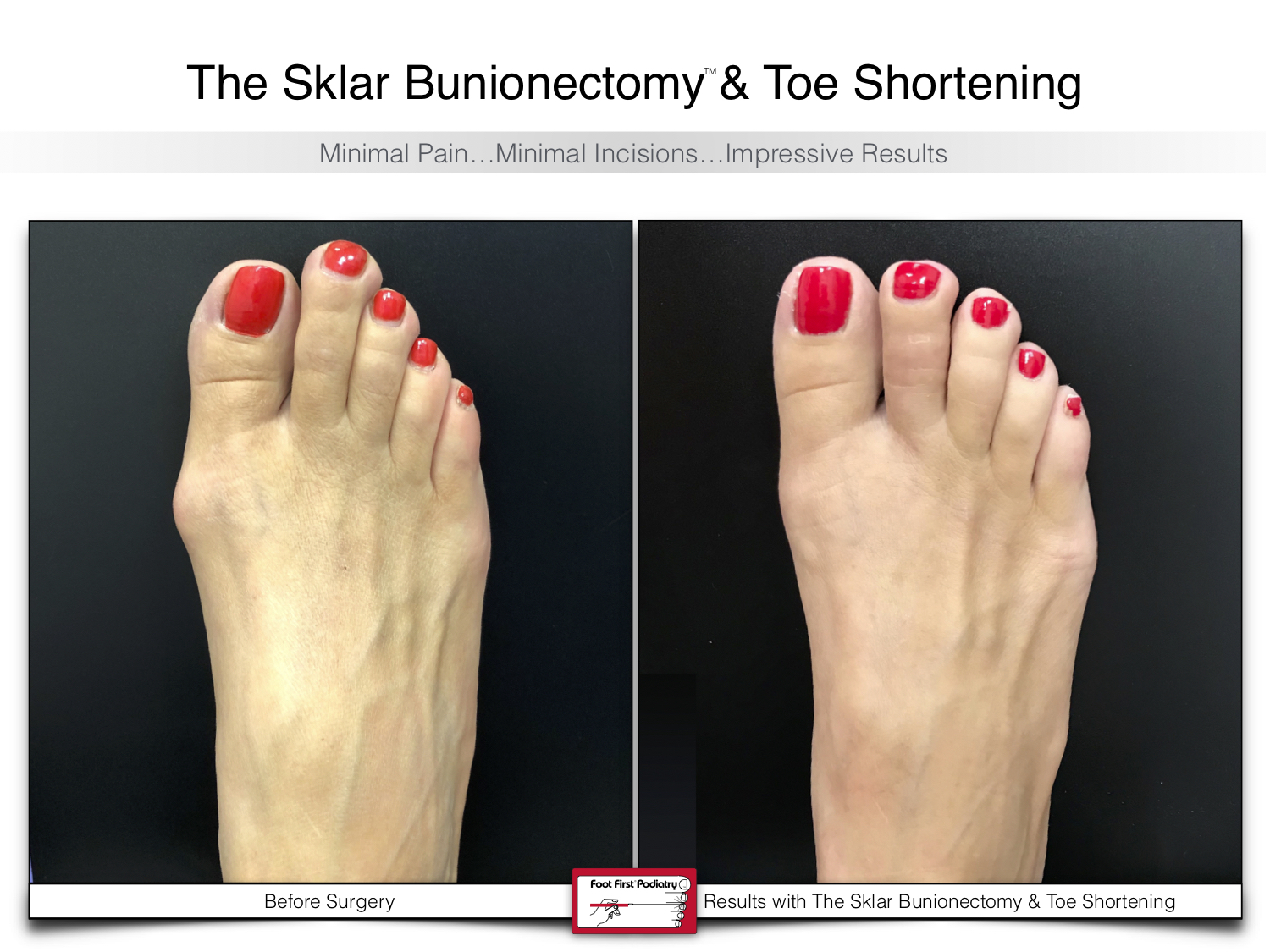 www.footfirst.com | Cosmetic Bunion and Toe Shortening Surgery 125.jpg