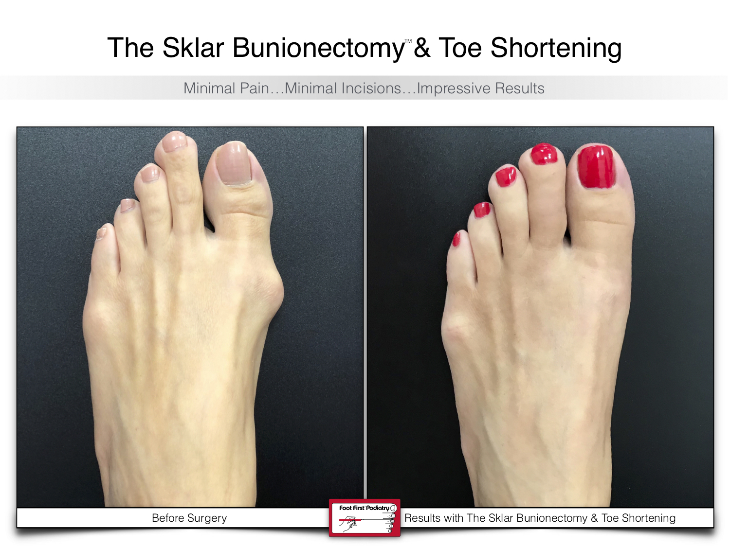 www.footfirst.com | Cosmetic Bunion and Toe Shortening Surgery 126.jpg