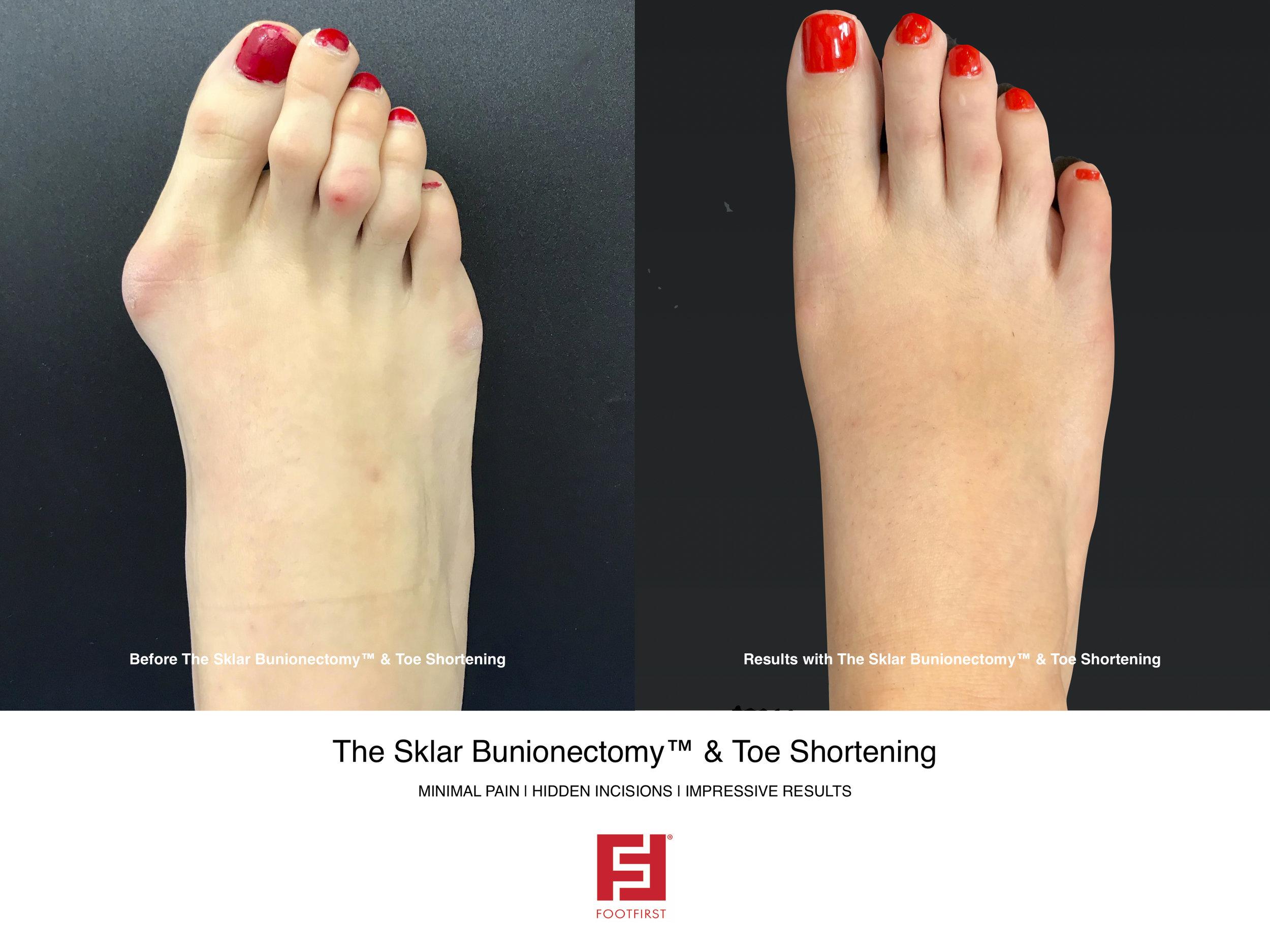 FF   www.footfirst.com - The Sklar Bunionectomy & Toe Shortening 2.jpg