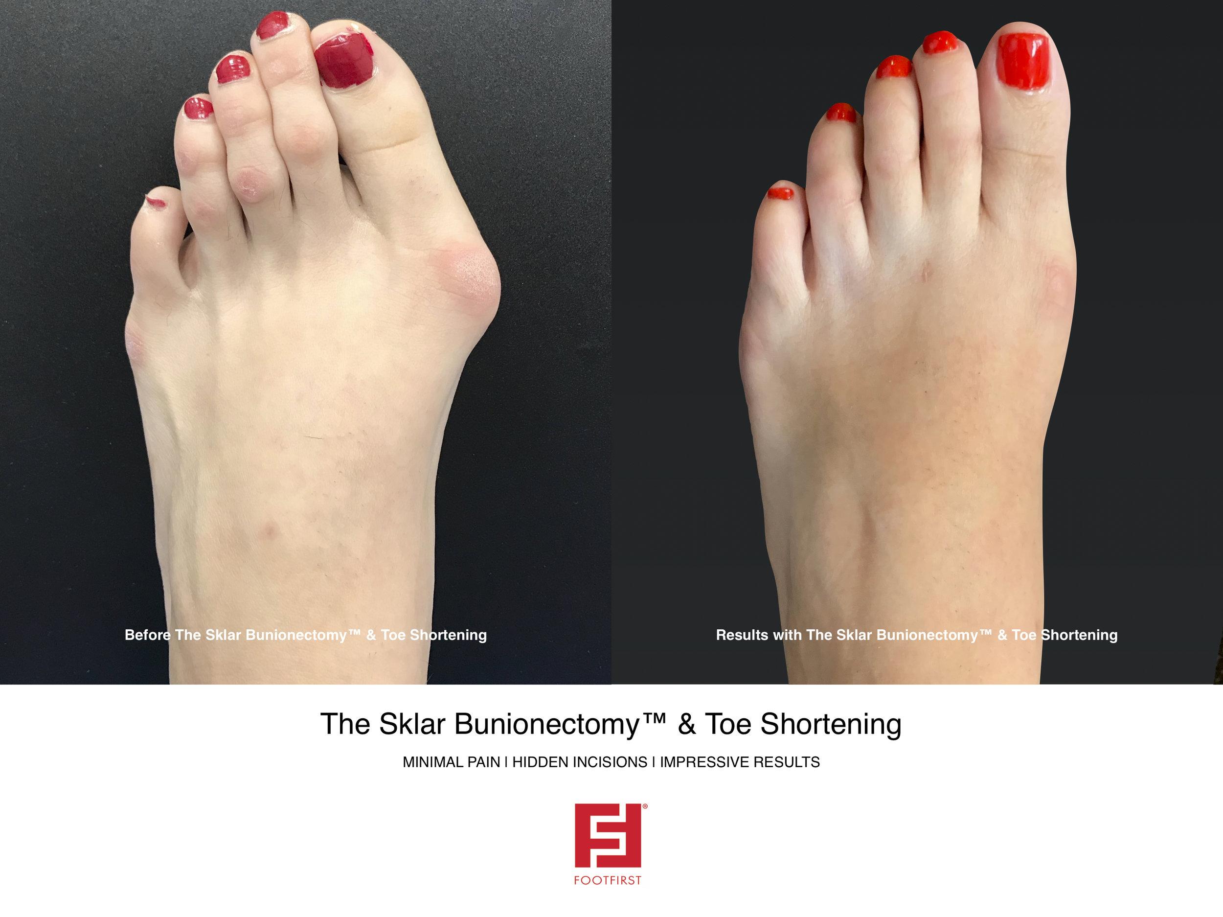 FF   www.footfirst.com - The Sklar Bunionectomy & Toe Shortening 1.jpg