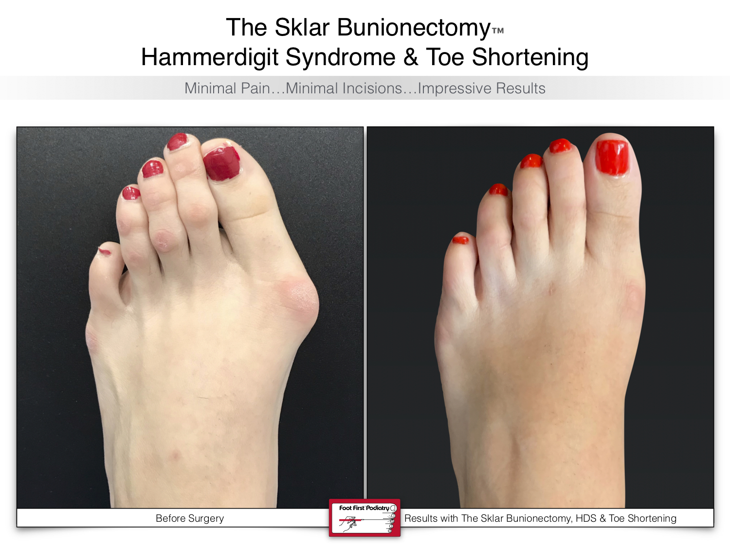 www.footfirst.com | Cosmetic Bunion and Toe Shortening Surgery 131.jpg