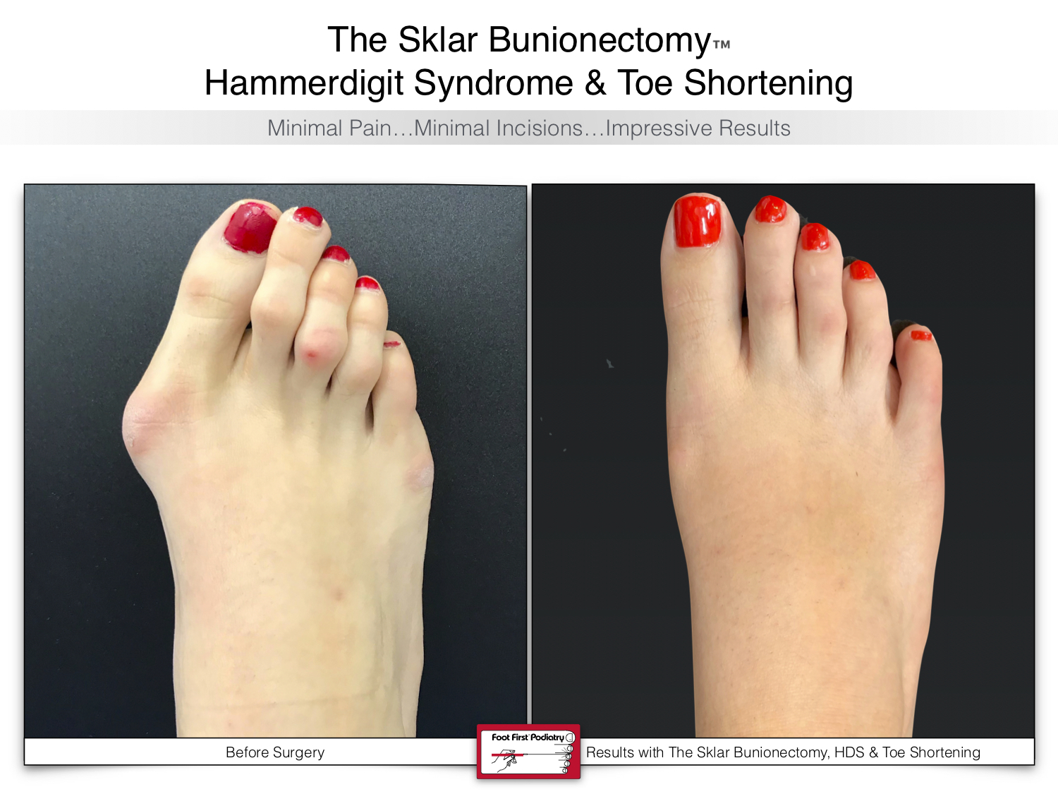 www.footfirst.com | Cosmetic Bunion and Toe Shortening Surgery 130.jpg