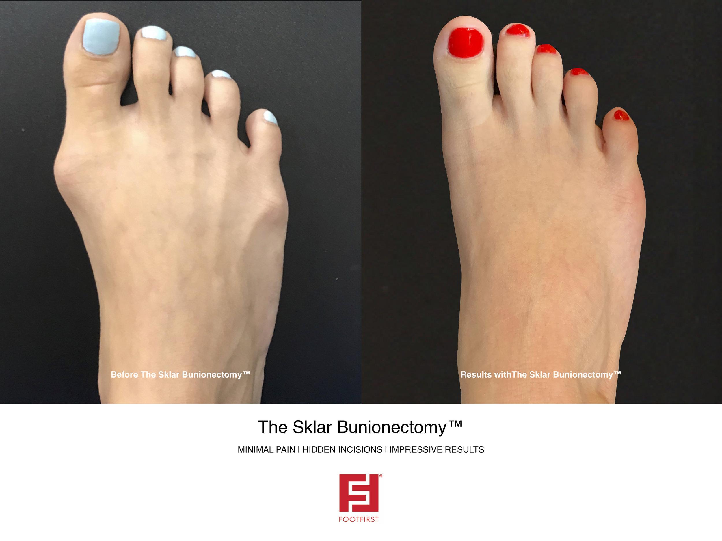 FF   www.footfirst.com - The Sklar Bunionectomy & Toe Shortening 4.jpg