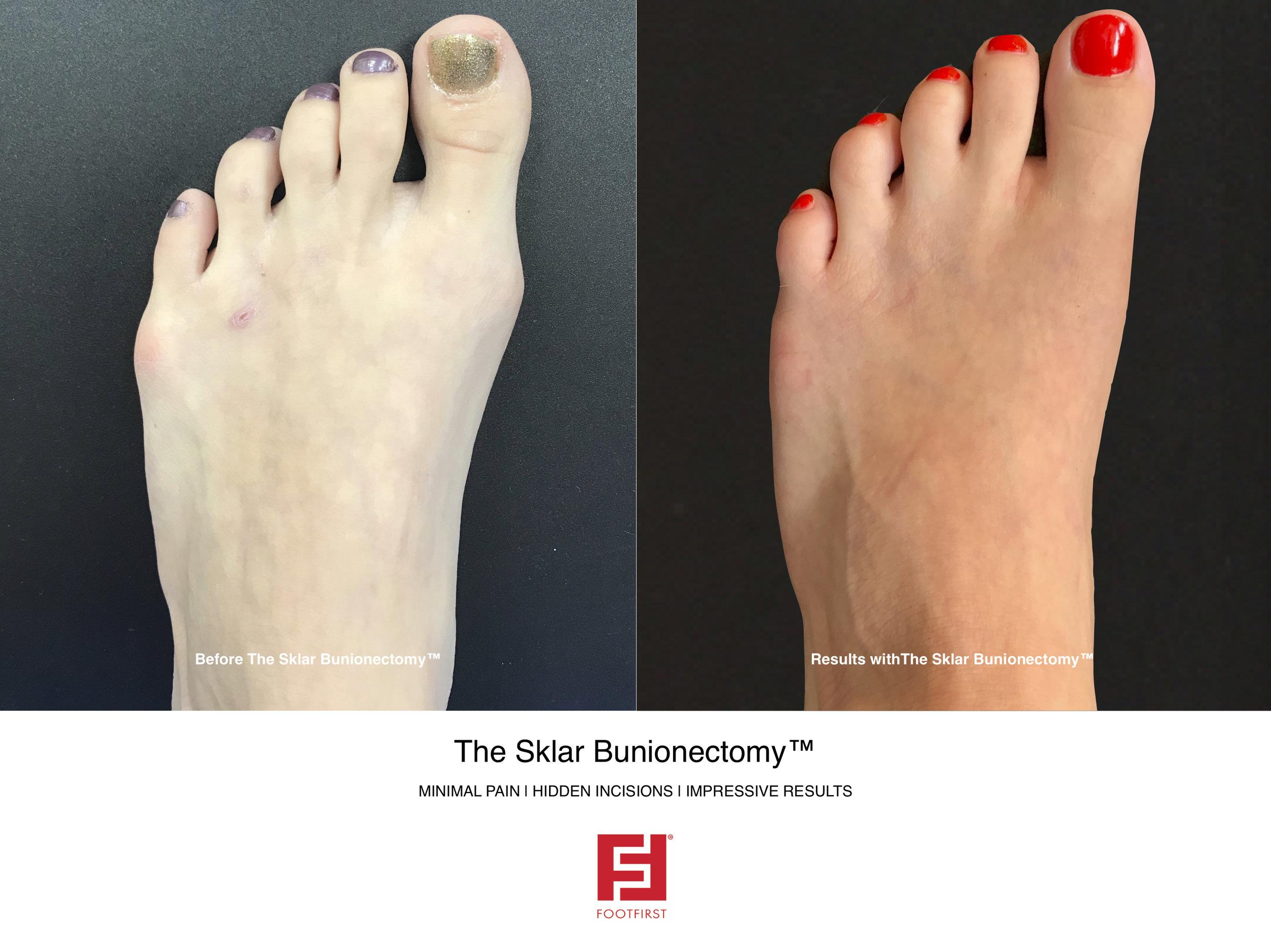 FF   www.footfirst.com - The Sklar Bunionectomy & Toe Shortening 3.jpg