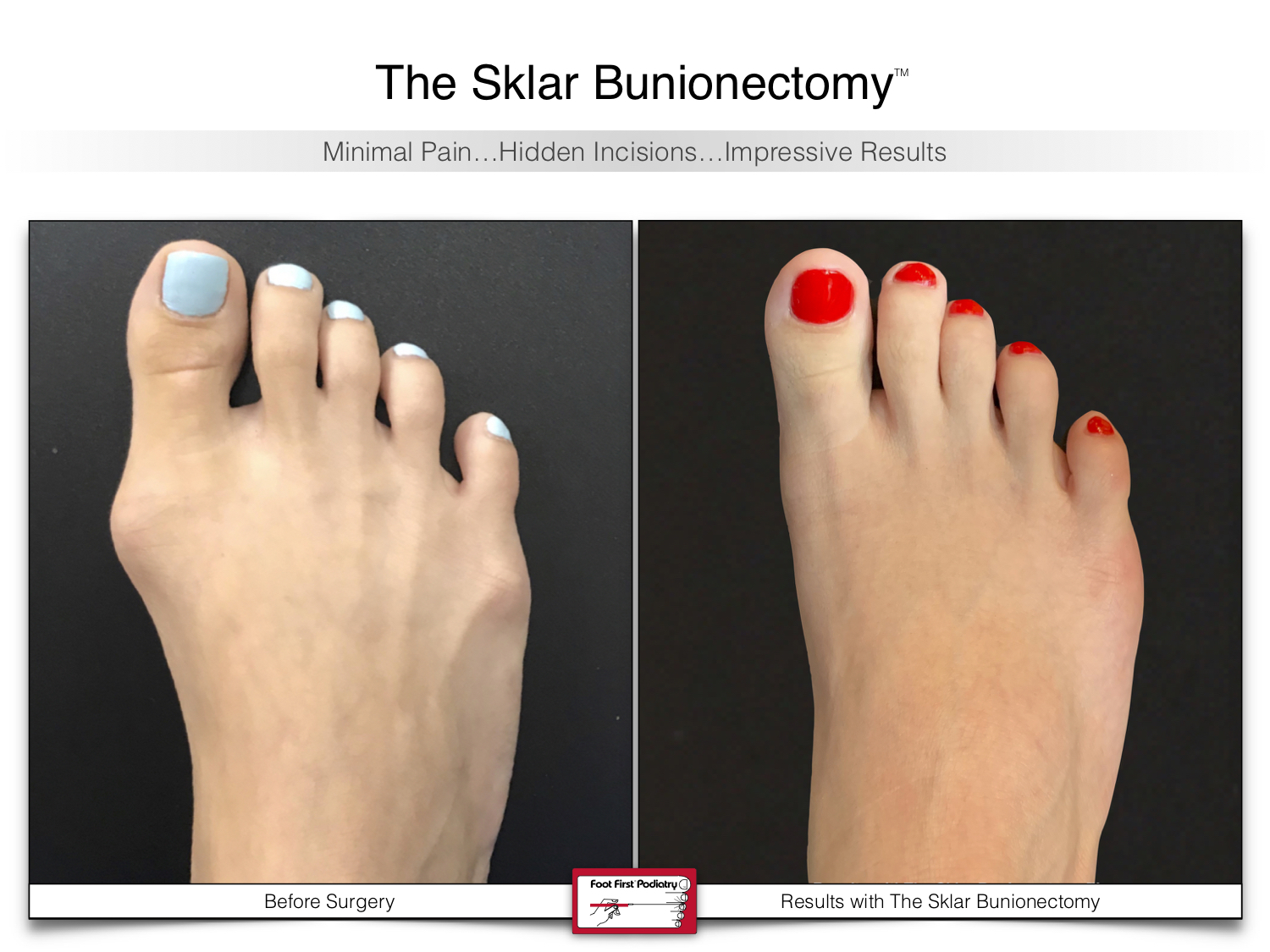 www.footfirst.com | Cosmetic Bunion and Toe Shortening Surgery 133.jpg
