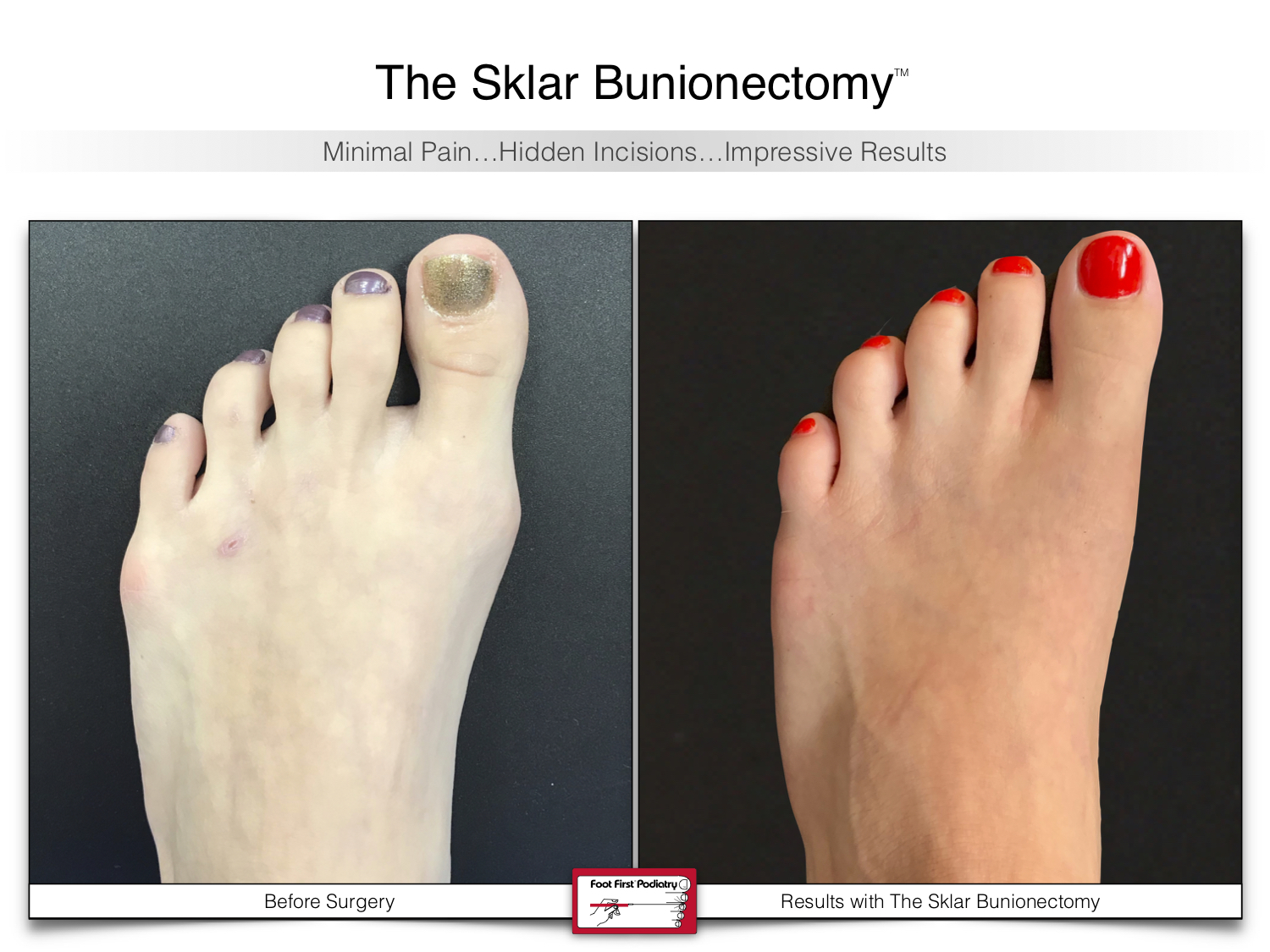 www.footfirst.com | Cosmetic Bunion and Toe Shortening Surgery 132.jpg