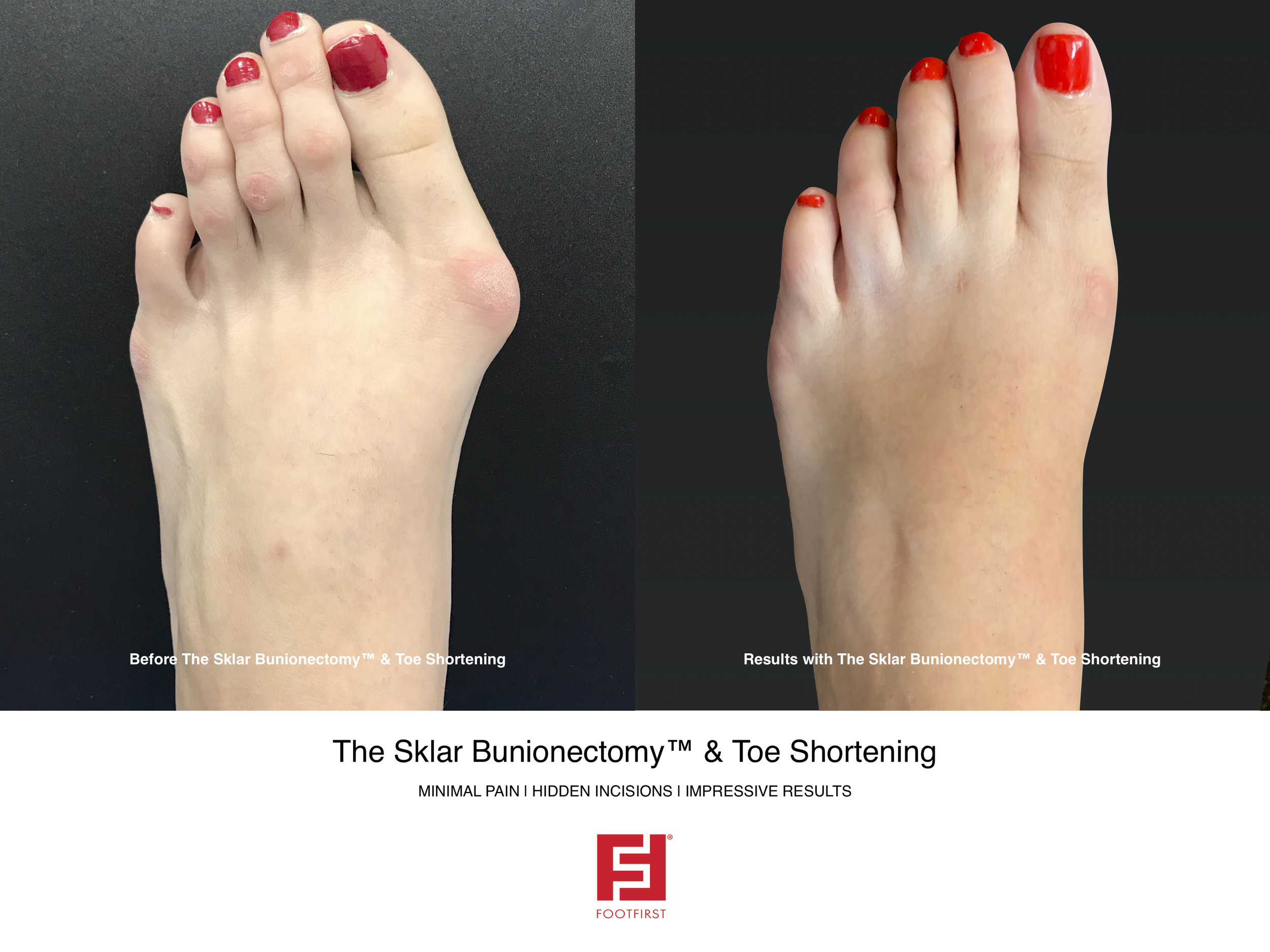 FF | www.footfirst.com - The Sklar Bunionectomy & Toe Shortening 1.jpg