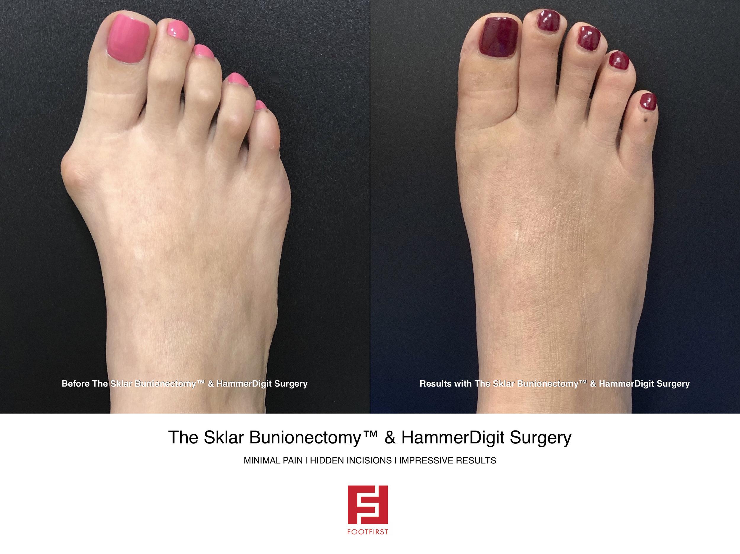 FF  www.footfirst.com - The Sklar Bunionectomy & Toe Shortening 19.jpg