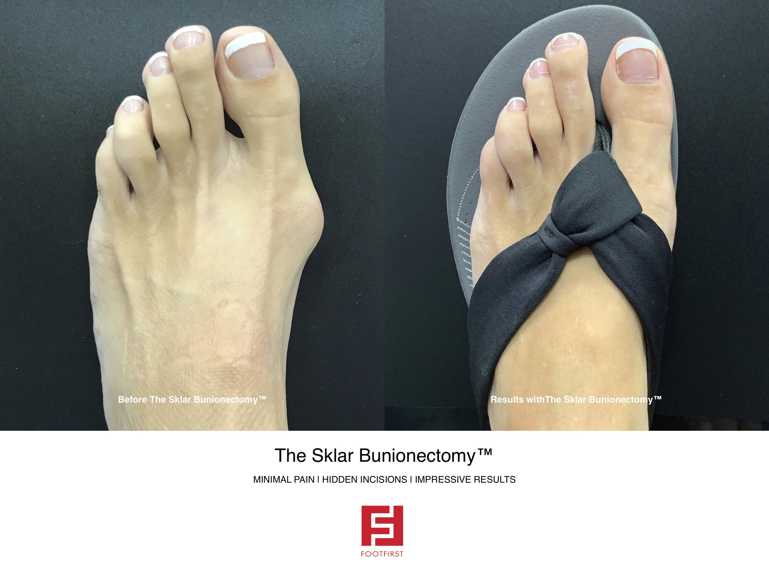 FF  www.footfirst.com - The Sklar Bunionectomy & Toe Shortening 18.jpg