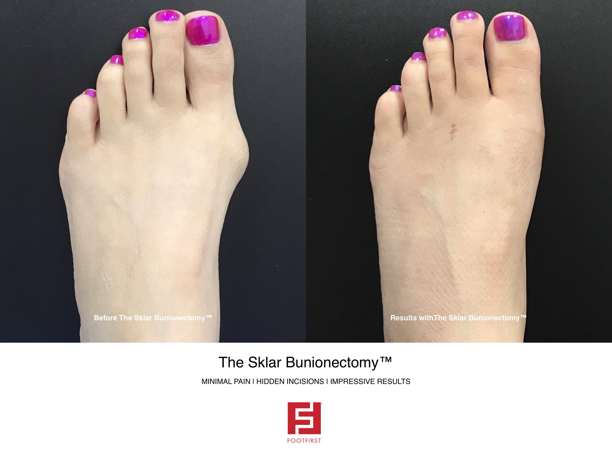 FF  www.footfirst.com - The Sklar Bunionectomy & Toe Shortening 12.jpg