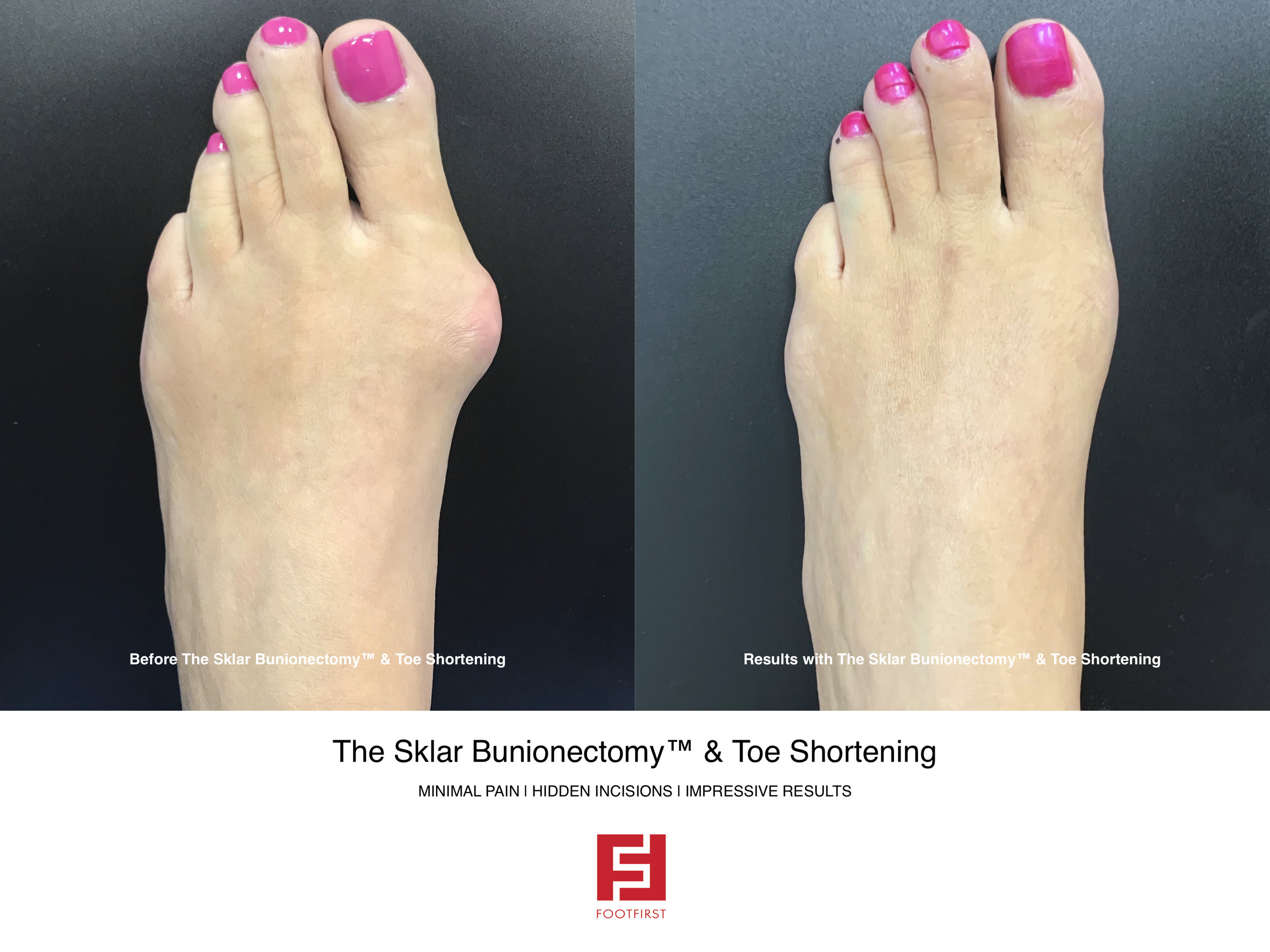 FF  www.footfirst.com - The Sklar Bunionectomy & Toe Shortening 11.jpg