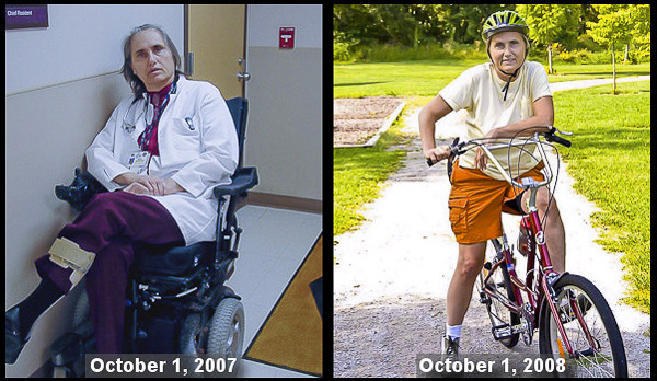 Dr-Terry-Wahls-Before-and-After.jpg