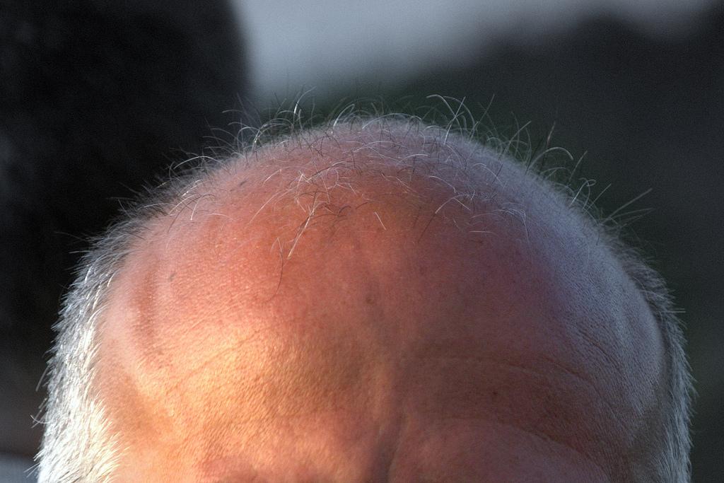 Not my actual head.