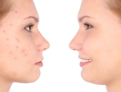 Лечение прыщей, угрей и акне в Твери эффект до и после УЗ чистки