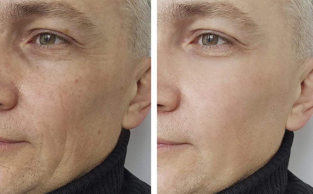 Мезотерапия в Твери До и После