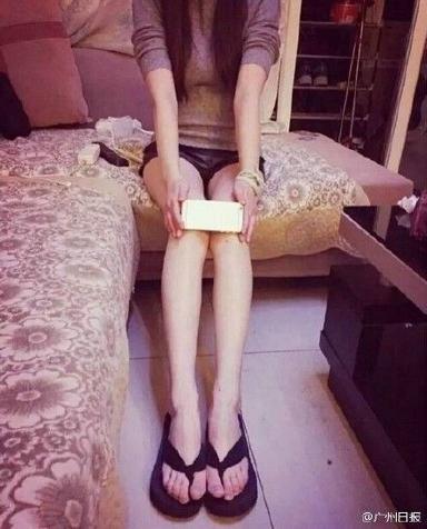 iphone knee