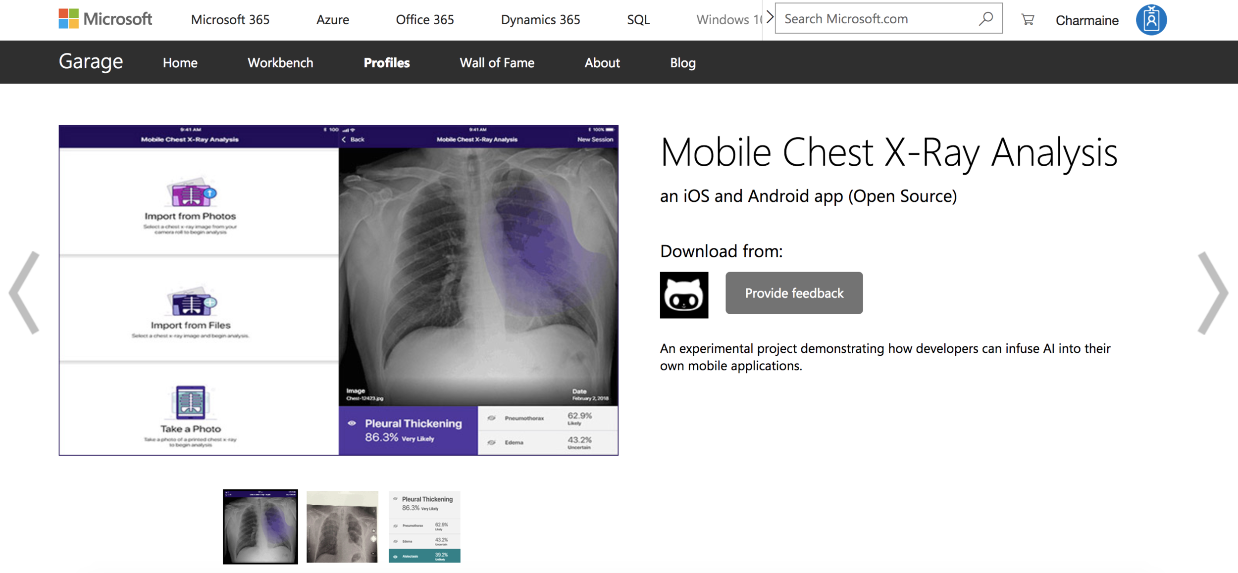 Screenshot of Chest X-Ray Mobile Analysis on Microsoft Website