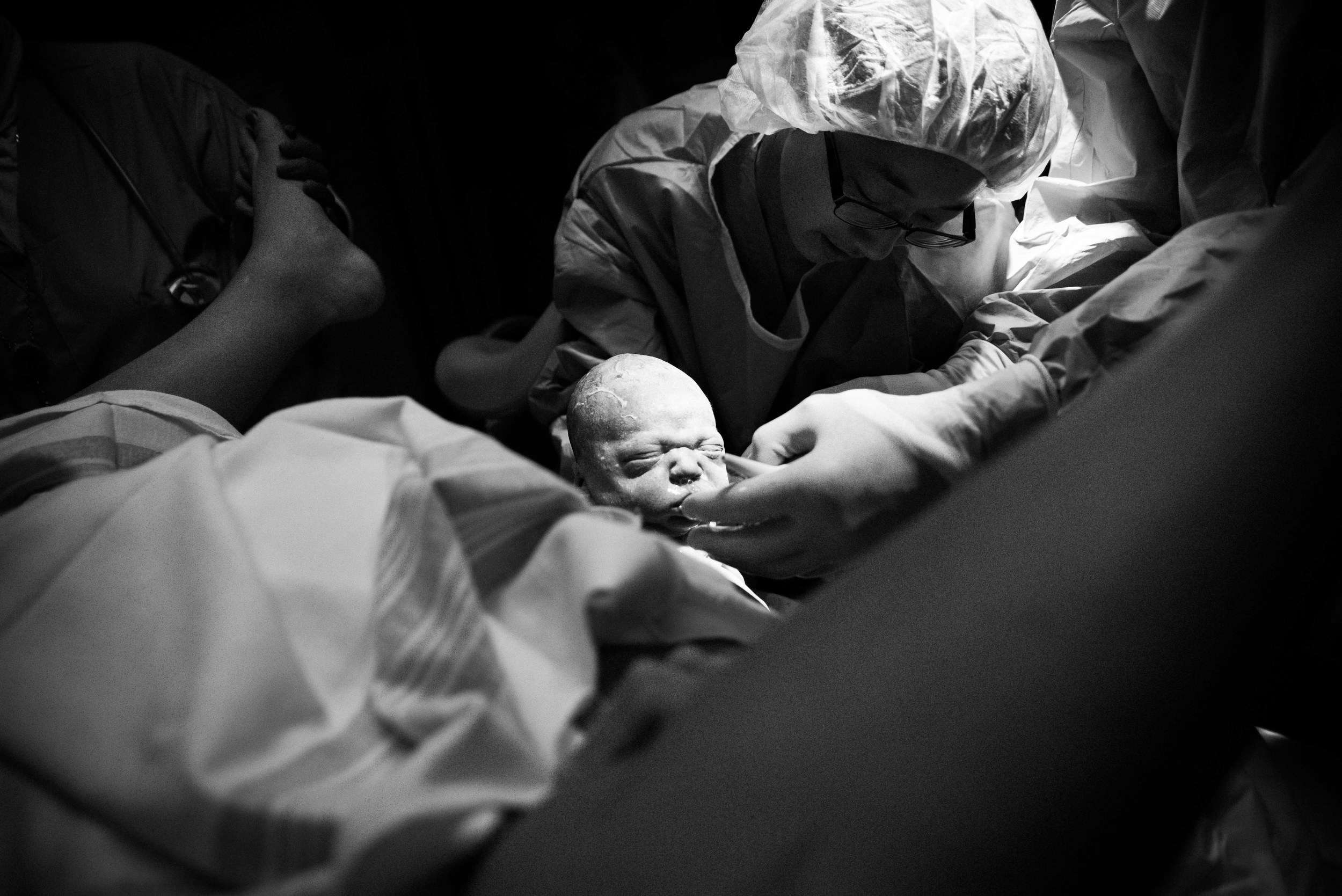 baby being born in a hospital with resident