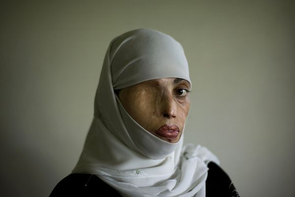 tortured-afghan-woman.jpg