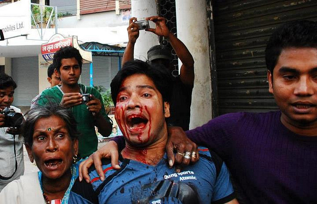 injured-bangladeshi-protester-photo-by-protibadi-musafir.jpg