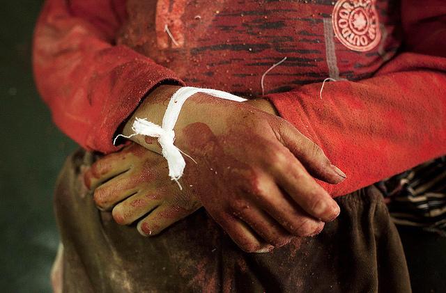 body-of-7-year-old-boy-killed-by-a-syrian-army-in-dar-al-shifa-hospital-in-aleppo-syria-photo-by-peacock-almntouf.jpg