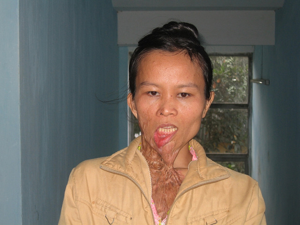 acid-attack-victim-photo-by-resurge-international.jpg