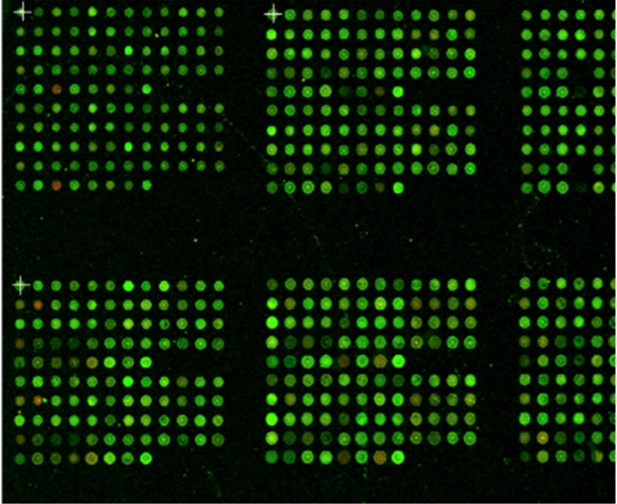 Nirmidas MidaScan™ image showing flourescense of multiple biomarkers for each patient sample