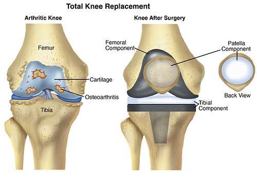 KneeReplacement-SM.jpg