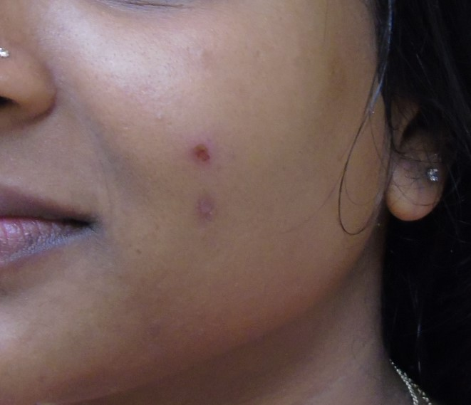 Before Peel & Microdermabrasion