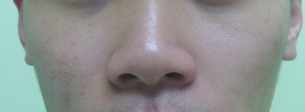 After PRP Dermastamp