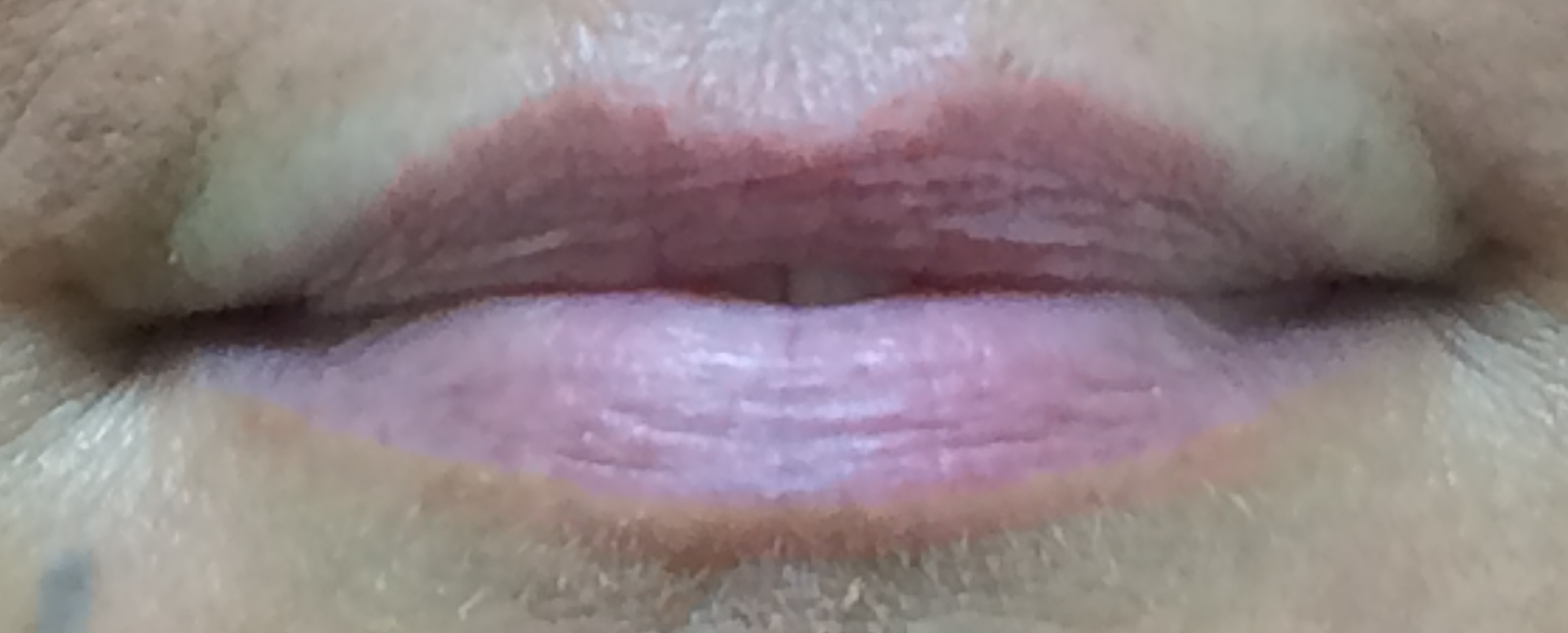 Lip 3 pre.JPG