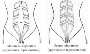 diastasis+recti+separation.jpg