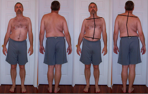 """Look how crooked my hips, spine, shoulders were. Look at my head tilt. My wife said """"you're crooked"""" and she was right. Despite looking like this, I've been completely pain free for 6 years now. And I didn't need surgery either."""