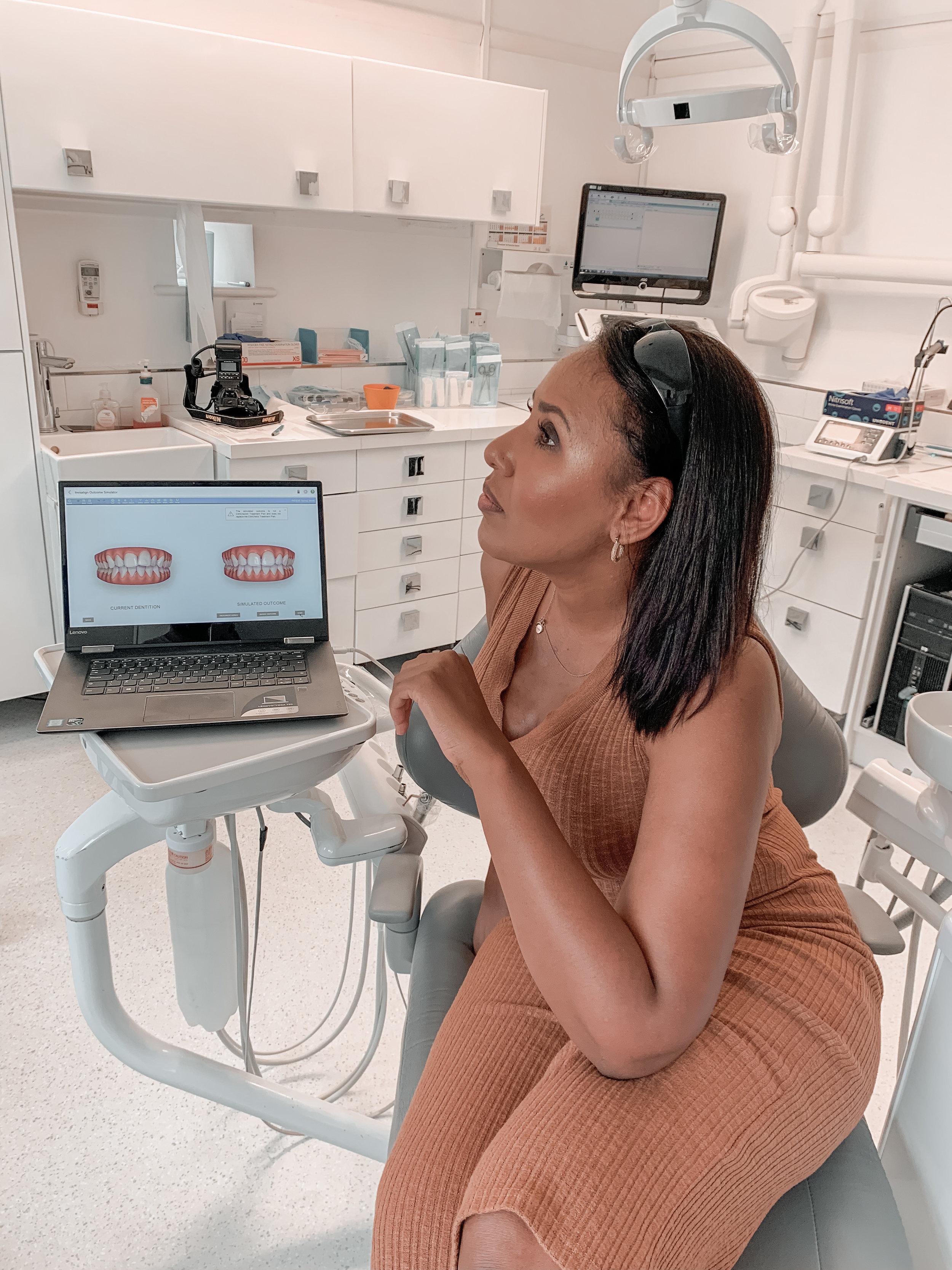 Nicole Fiona Serrao Clifton Dental Surgery Invisalign Treatment