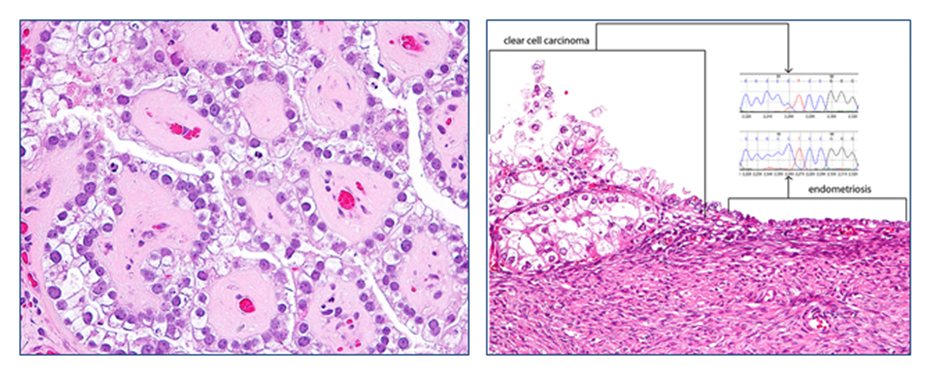 Figure 3.  The histologic features of an ovarian clear cell carcinoma (H&E, left panel). An identical  PIK3CA  somatic mutation is detected in both clear cell carcinoma and the adjacent endometriotic cyst epithelium, suggesting that endometriotic cyst epithelium is the precursor of clear cell carcinoma.