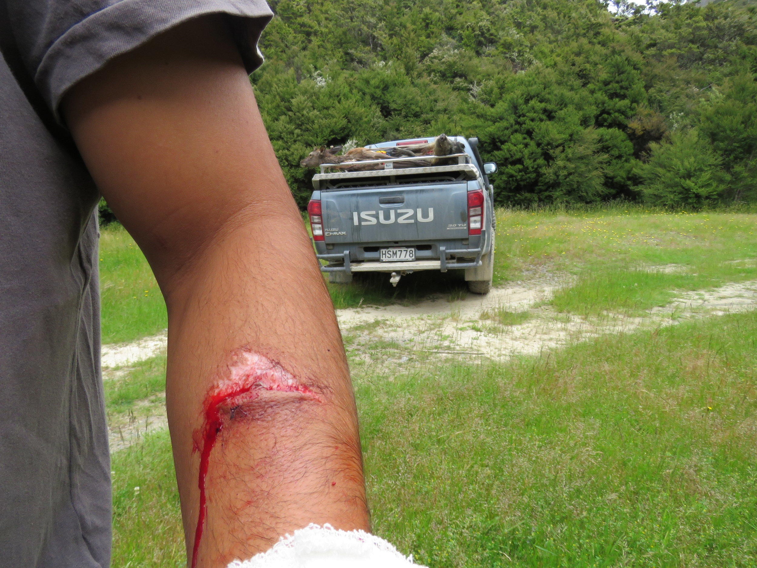 An Argentinian visitor on his first pig hunt and ends up with 8 stitches.
