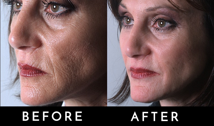 Signature Face lift before and after.jpg
