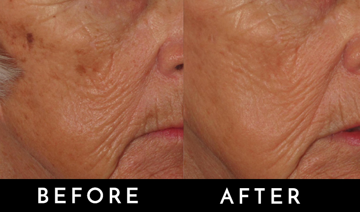 celluma pro light therapy before and after.jpg