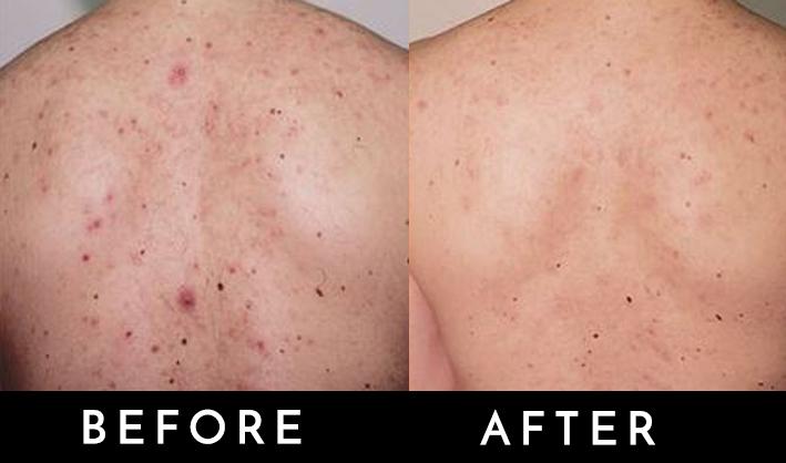 bacne treatment.jpg