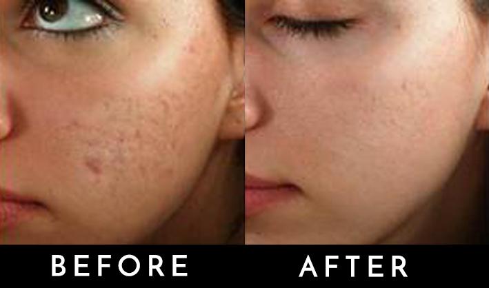 derma[en acne.jpg