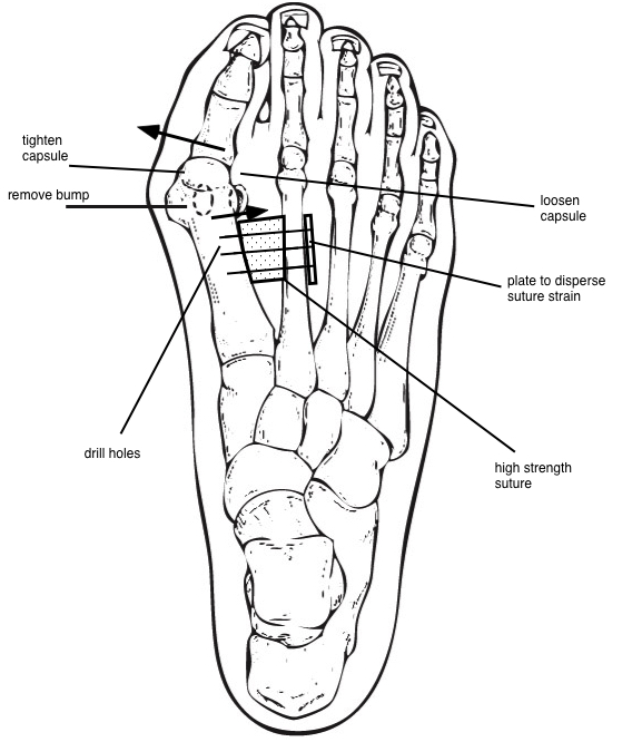 syndesmosis diagram final.jpg