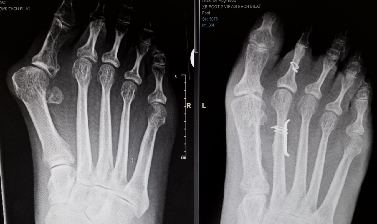 55 year old female with severe bunion deformity and hypermobile first metatarsal before and one year surgery.