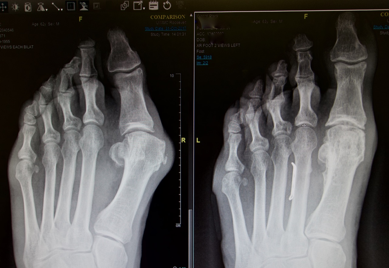 63 year old white male with severe and painful bunion before and 14 months after surgery.