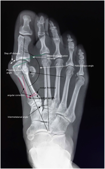 preop bunion